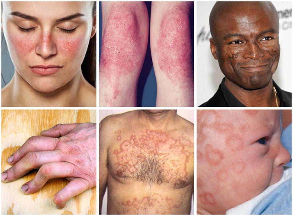 Luupuse-sümptomid