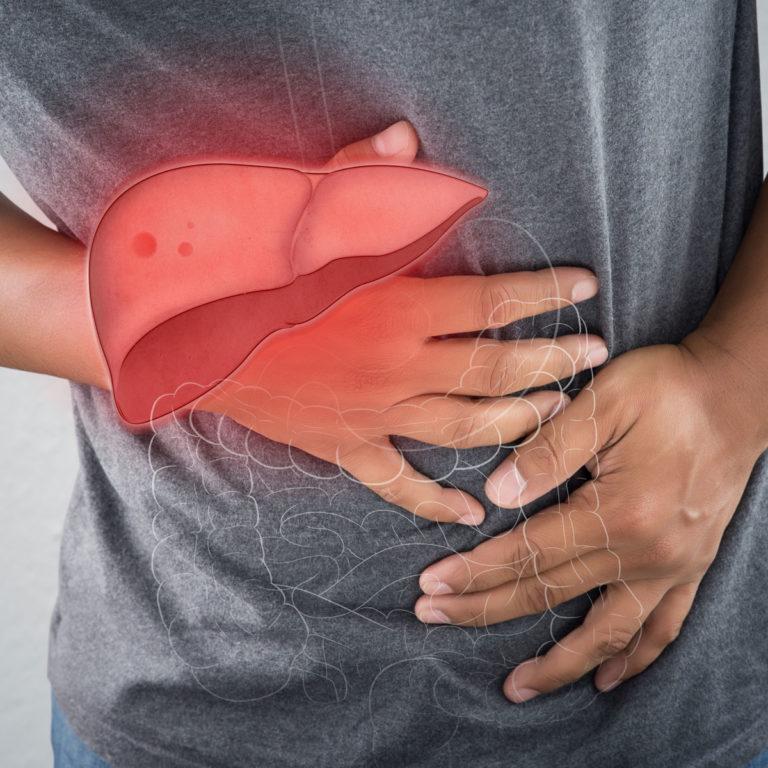Hepatiit e. maksapõletik