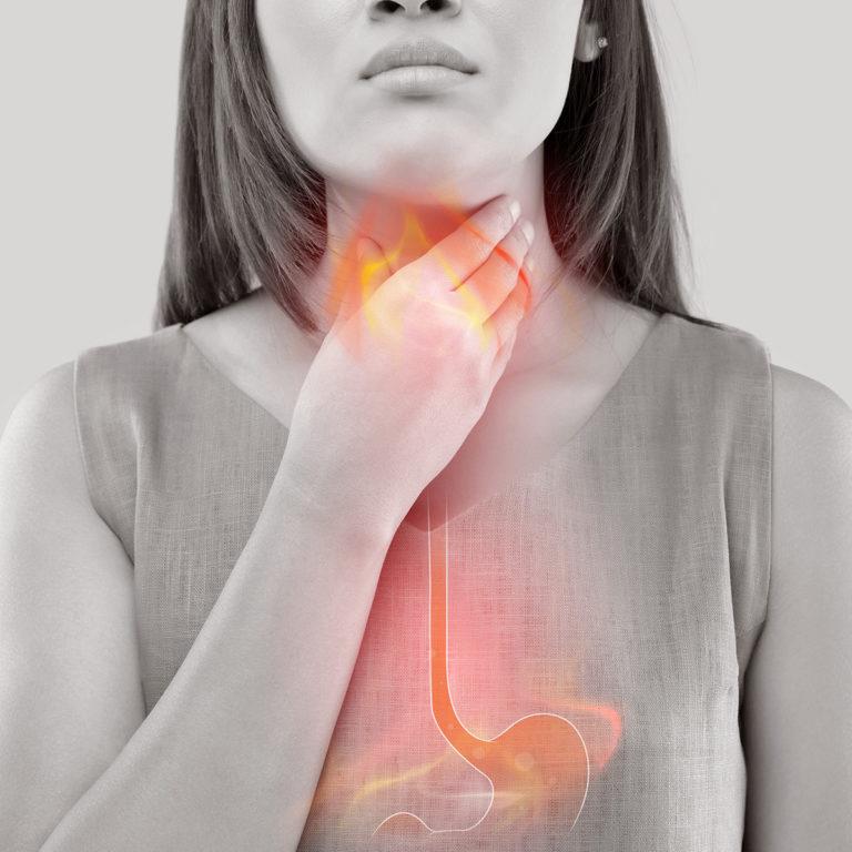 REFLUKS – kõrvetised, mao-söögitoru tagasivooluhaigus