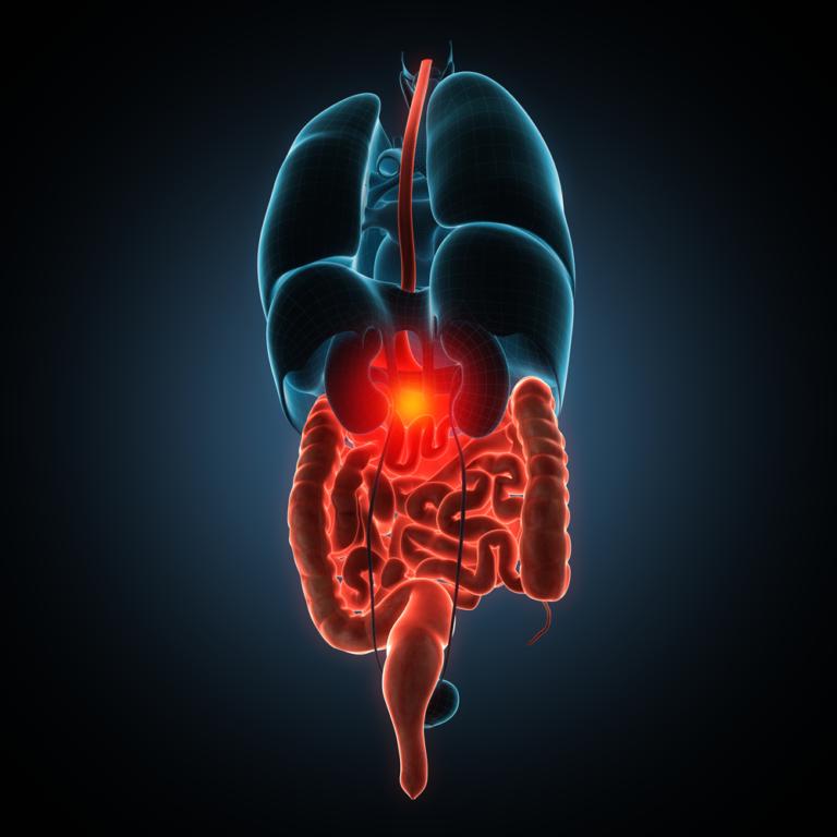 KOLIIT JA CROHNI TÕBI – kroonilised soolepõletikud