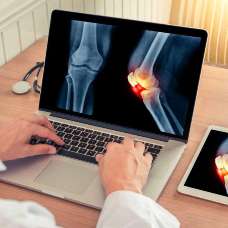 ARTROOS, OSTEOPOROOS, REUMATOIDARTRIIT – ja muud kroonilised liigeste ja luude haigused