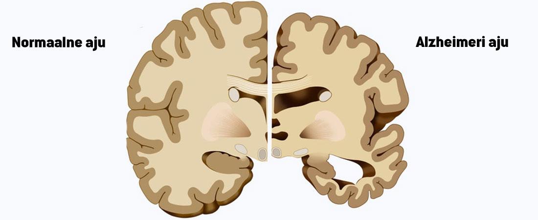 Alzheimeri-aju