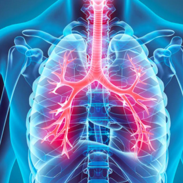 BRONHIIT – millega end toetada bronhiidist paranemisel?