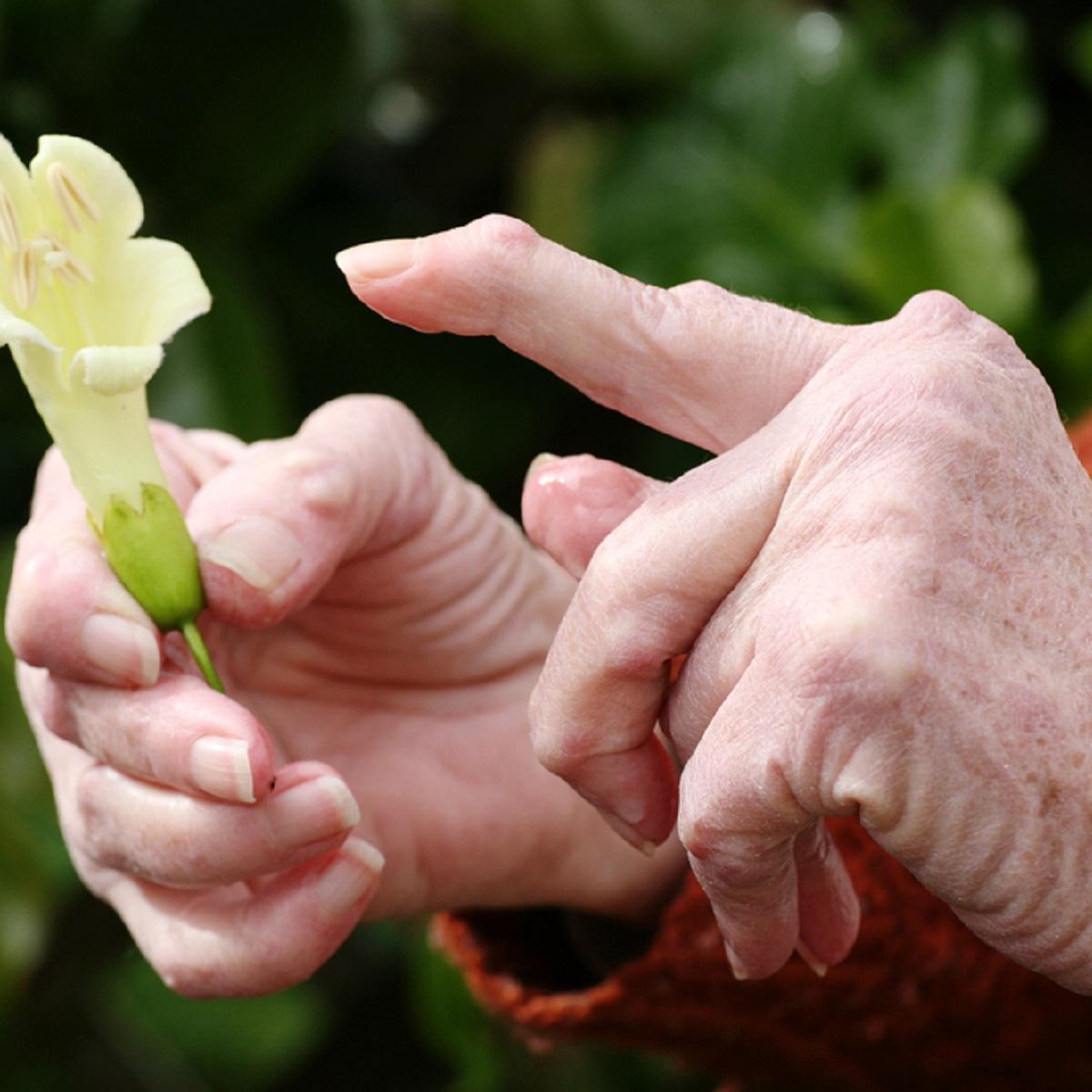 REUMATOIDARTRIIT (RA)- sümptomid, põhjused, riskitegurid, ravi, reumatoidartriidi dieet ja toidulisandid ravi toetuseks