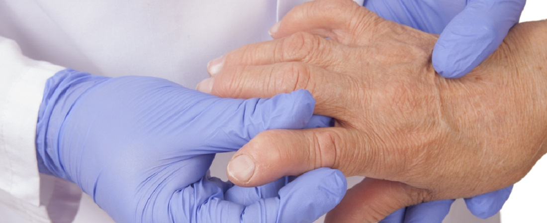 Reumatoidartriidi_tunnused_ja_põhjused