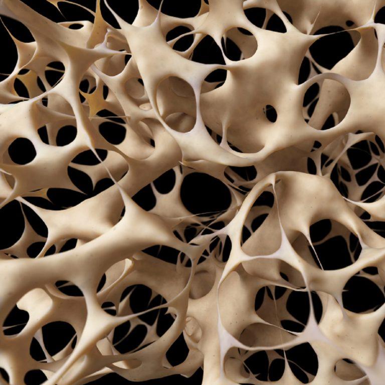 Osteoporoos ehk luuhõrenemine