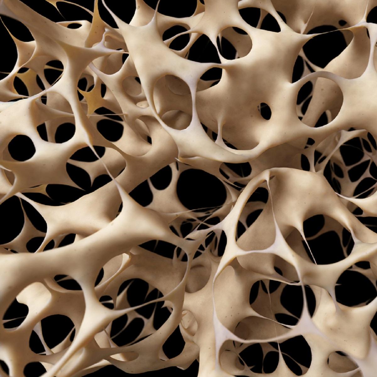 OSTEOPOROOS (OA) – sümptomid, põhjused, riskigrupid, ennetus ja ravi