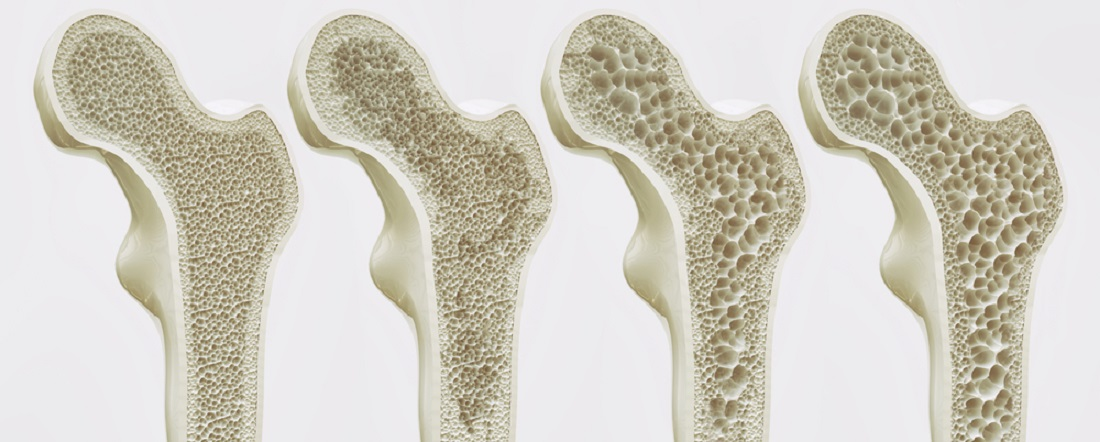 Osteoporoosi staadiumid